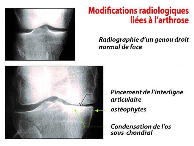 Radiographie d'un genou droit normal de face.